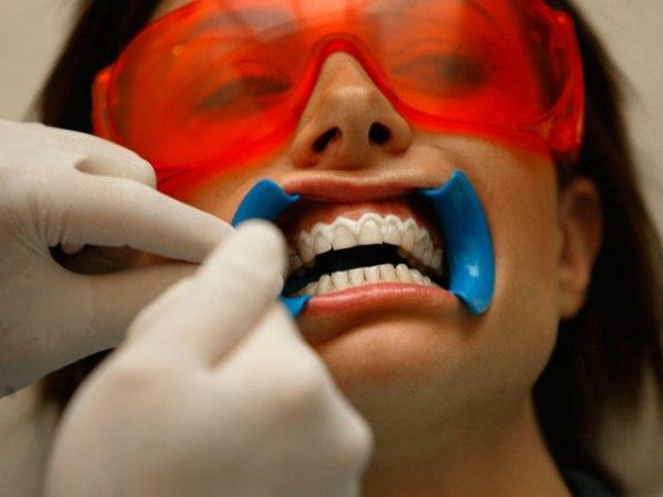 teeth-whitening-generic
